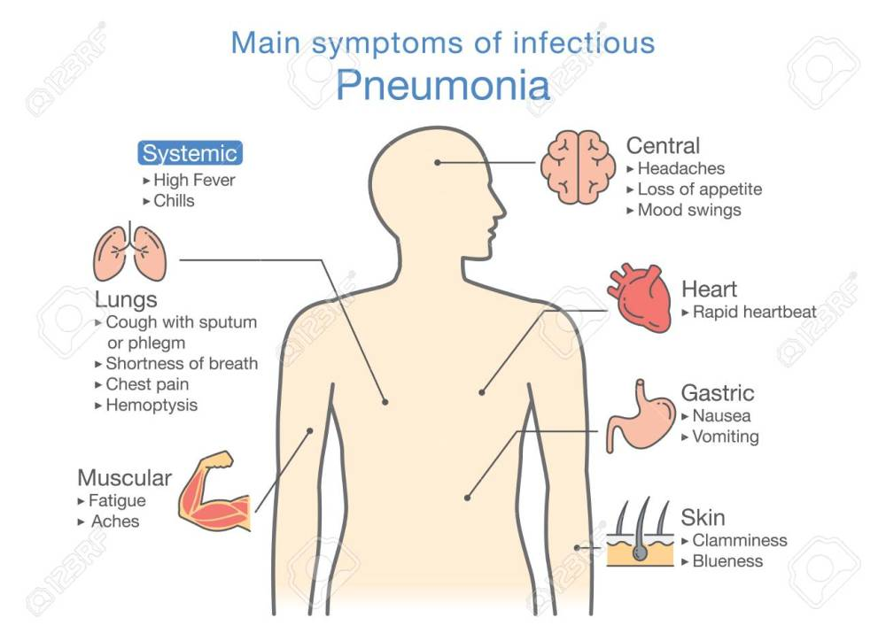 medium resolution of main symptoms of infectious pneumonia illustration about diagram for health check up stock vector