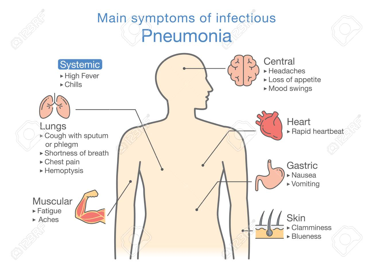 hight resolution of main symptoms of infectious pneumonia illustration about diagram for health check up stock vector
