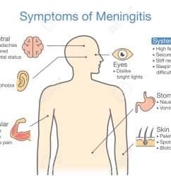 symptoms of meningitis patient diagram to showing signs of disease stock vector 89327353 [ 1300 x 942 Pixel ]