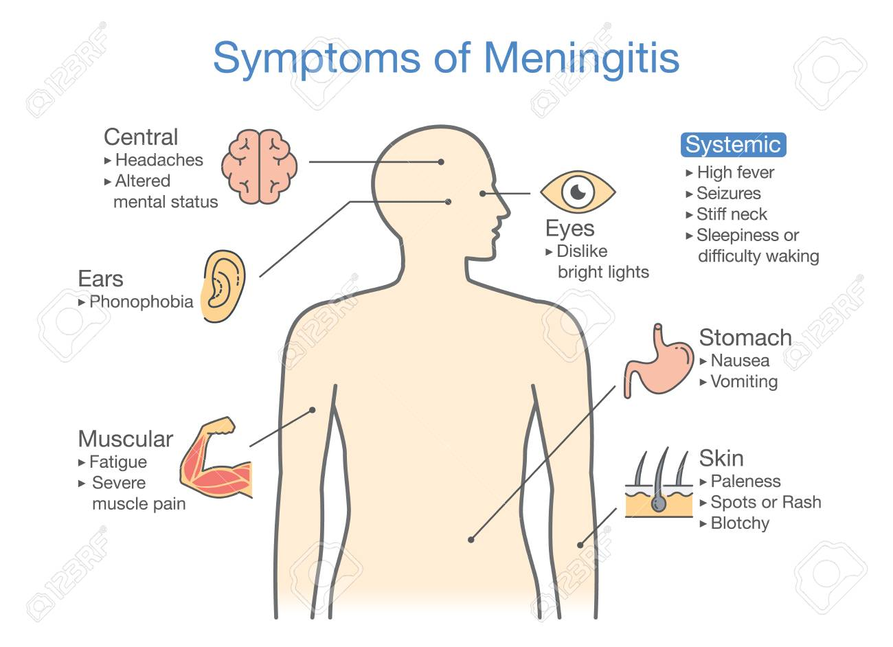 hight resolution of symptoms of meningitis patient diagram to showing signs of disease stock vector 89327353