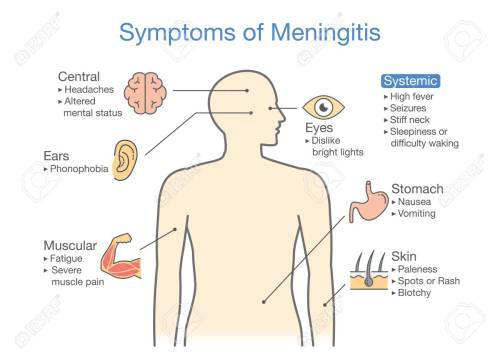small resolution of symptoms of meningitis patient diagram to showing signs of disease stock vector 89327353