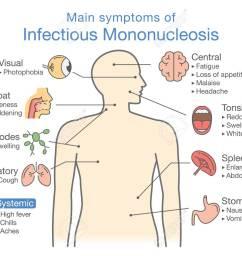 symptoms of infectious mononucleosis disease diagram for diagnose patient of doctor stock vector  [ 1300 x 942 Pixel ]