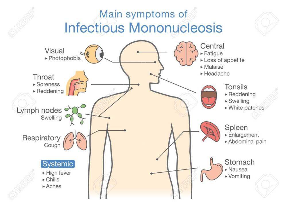 medium resolution of symptoms of infectious mononucleosis disease diagram for diagnose patient of doctor stock vector