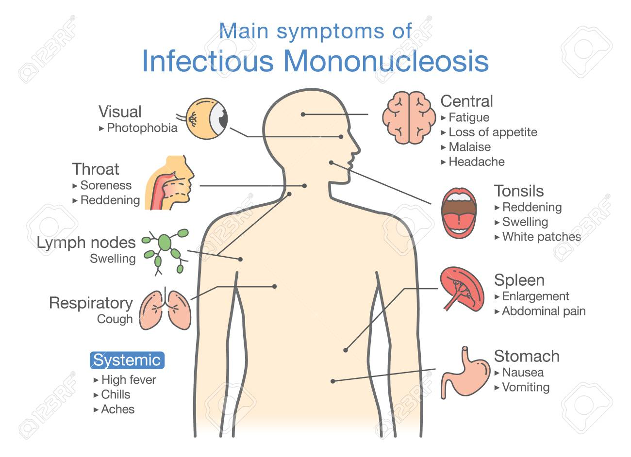 hight resolution of symptoms of infectious mononucleosis disease diagram for diagnose patient of doctor stock vector