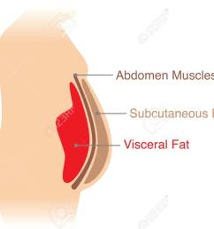 location of visceral fat stored within the abdominal cavity illustration about medical diagram stock [ 1300 x 899 Pixel ]