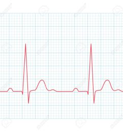 medical electrocardiogram ecg on grid paper graph of heart  [ 1300 x 1300 Pixel ]