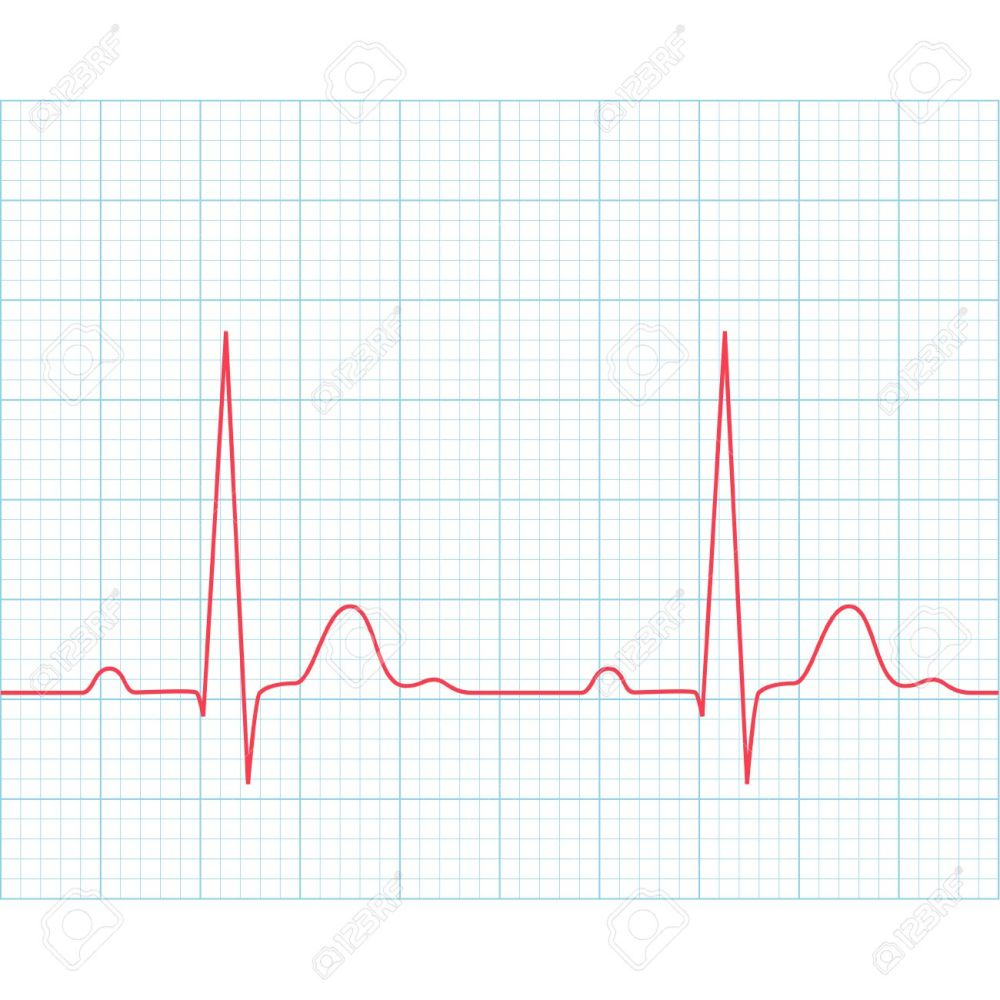 medium resolution of medical electrocardiogram ecg on grid paper graph of heart