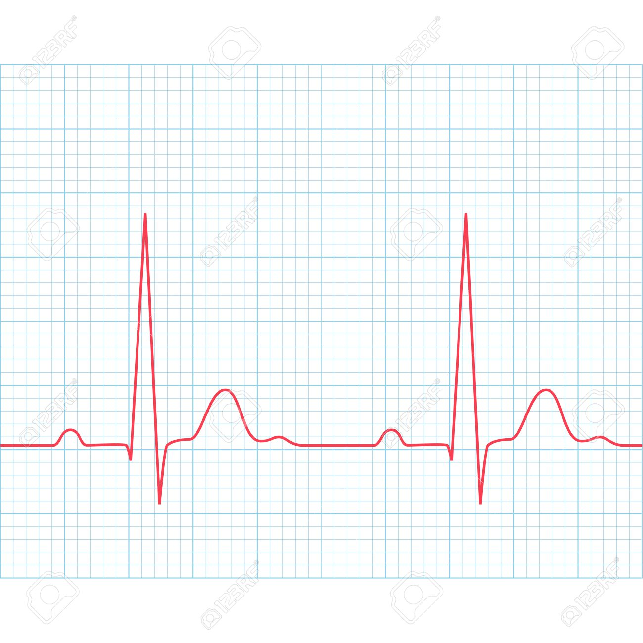 hight resolution of medical electrocardiogram ecg on grid paper graph of heart
