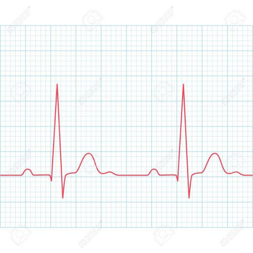 small resolution of medical electrocardiogram ecg on grid paper graph of heart