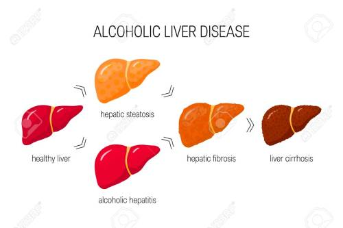 small resolution of stages of alcoholic liver disease vector illustration of healthy liver steatosis hepatitis