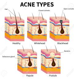 acne types pimple skin diseases anatomy medical vector diagram illustration of follicle and pimple [ 1299 x 1300 Pixel ]