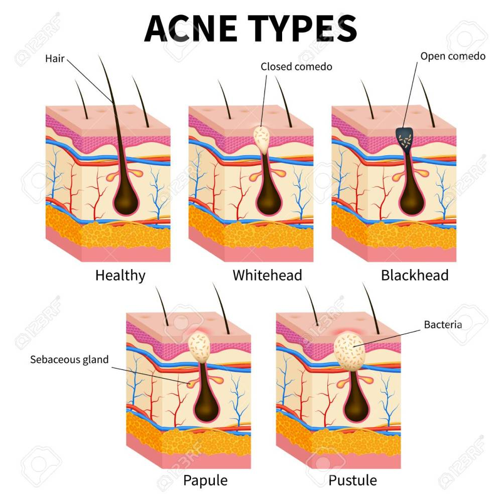 medium resolution of acne types pimple skin diseases anatomy medical vector diagram illustration of follicle and pimple