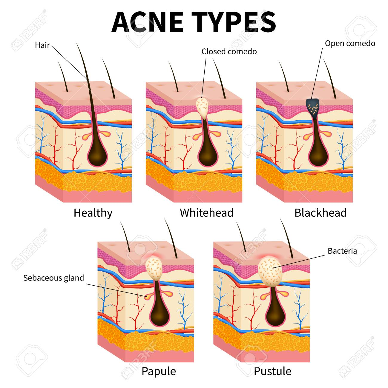 hight resolution of acne types pimple skin diseases anatomy medical vector diagram illustration of follicle and pimple