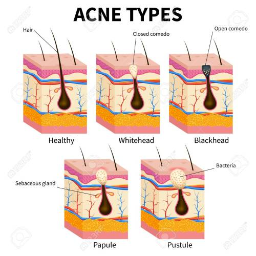 small resolution of acne types pimple skin diseases anatomy medical vector diagram illustration of follicle and pimple
