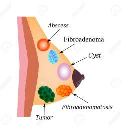 fibroadenomatosis fibroadenoma abscess tumor cyst in the mammary gland world breast [ 1300 x 1300 Pixel ]