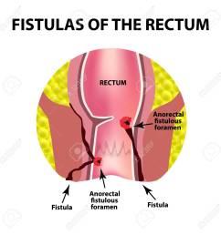 types of fistulas of the rectum paraproctitis anus abscess of the rectum  [ 1300 x 1300 Pixel ]