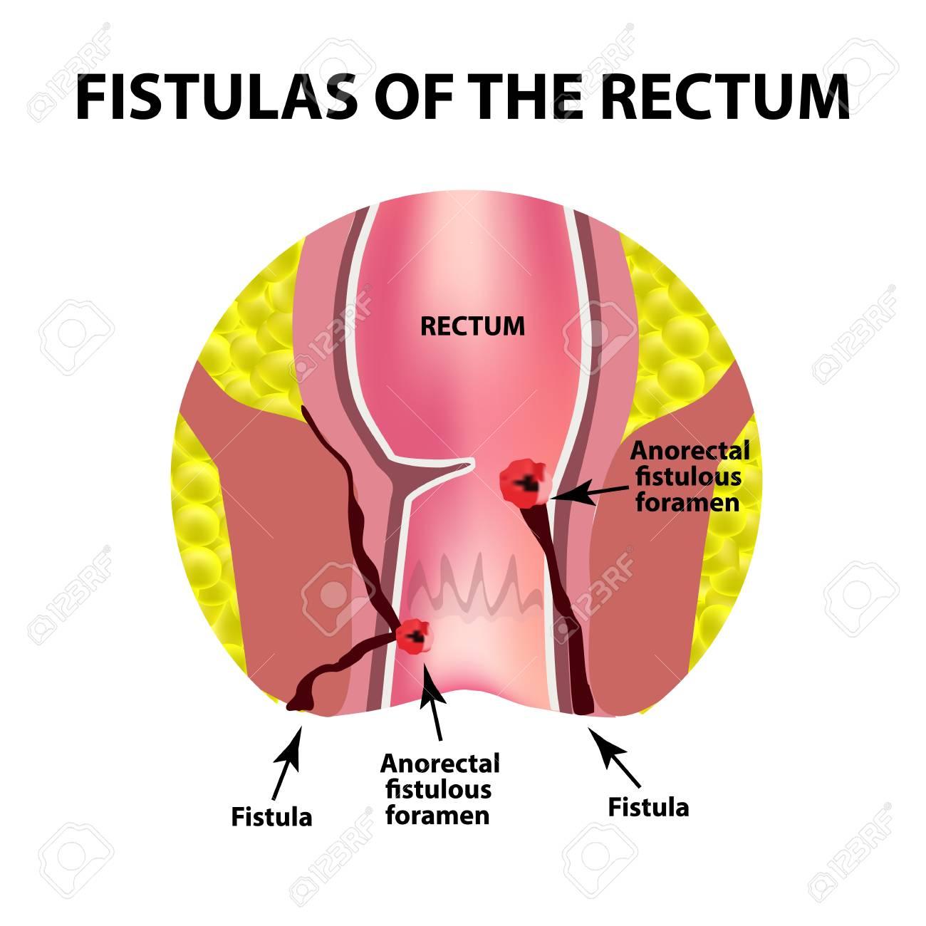 hight resolution of types of fistulas of the rectum paraproctitis anus abscess of the rectum