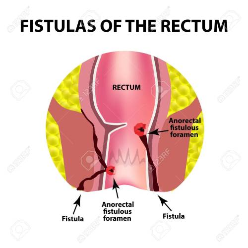 small resolution of types of fistulas of the rectum paraproctitis anus abscess of the rectum