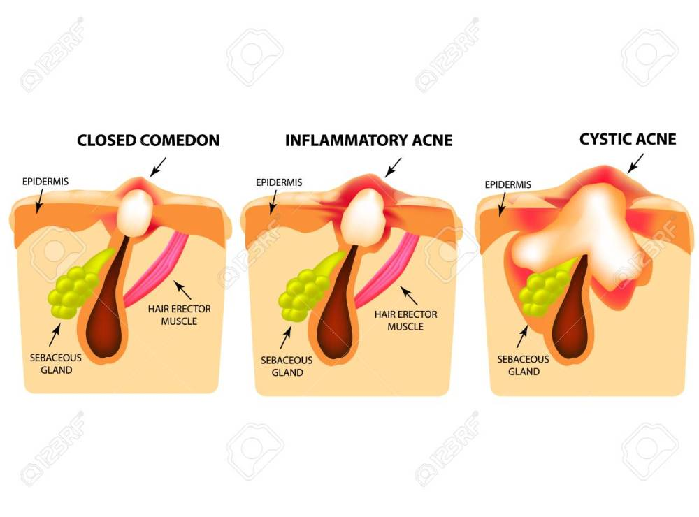 medium resolution of types of acne closed comedones inflammatory acne cystic acne diagram of acne cyst