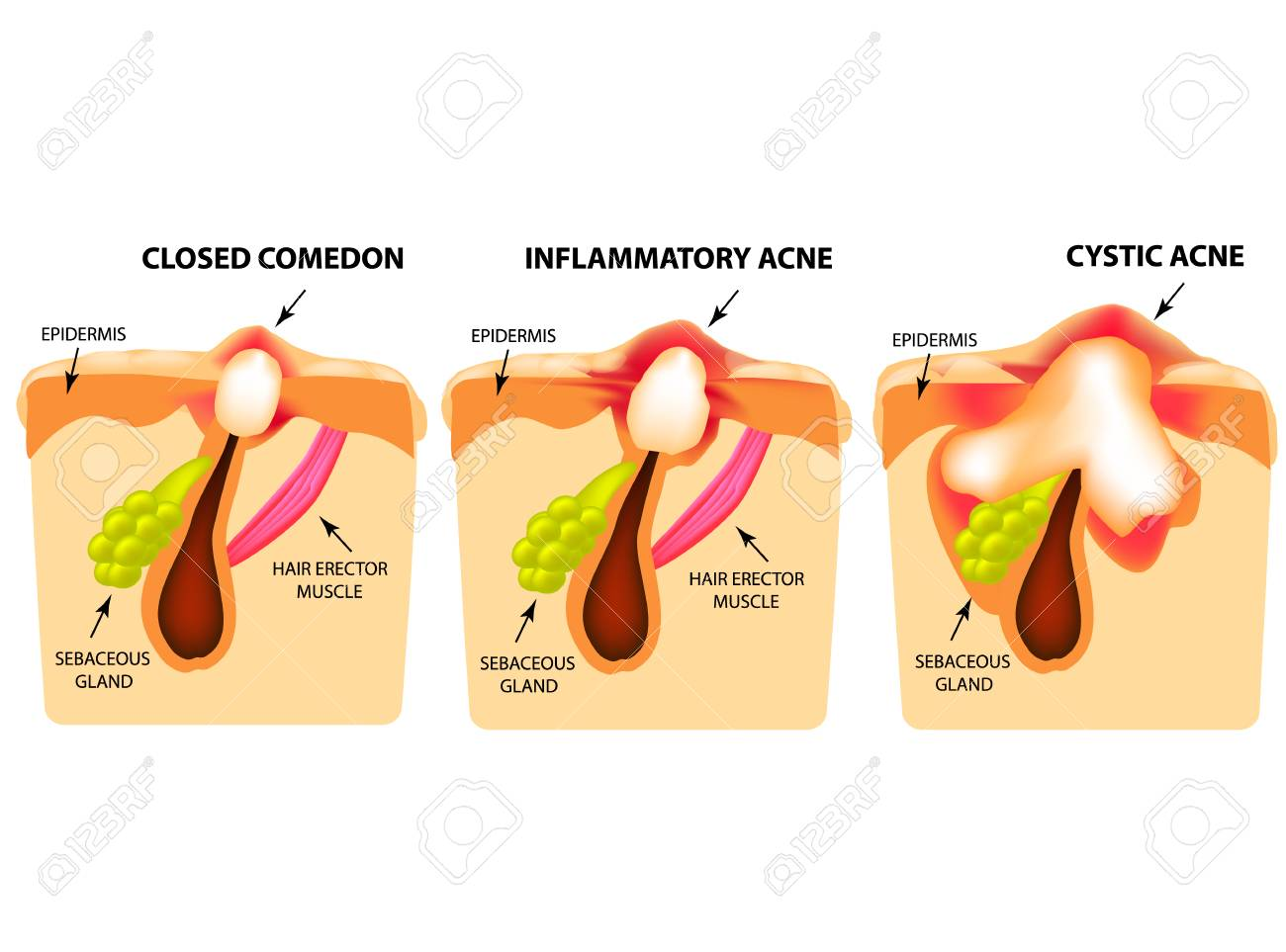 hight resolution of types of acne closed comedones inflammatory acne cystic acne diagram of acne cyst