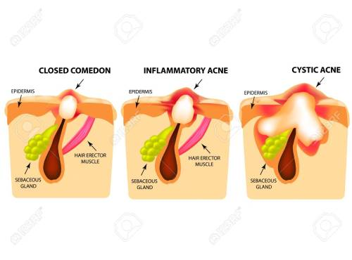 small resolution of types of acne closed comedones inflammatory acne cystic acne diagram of acne cyst