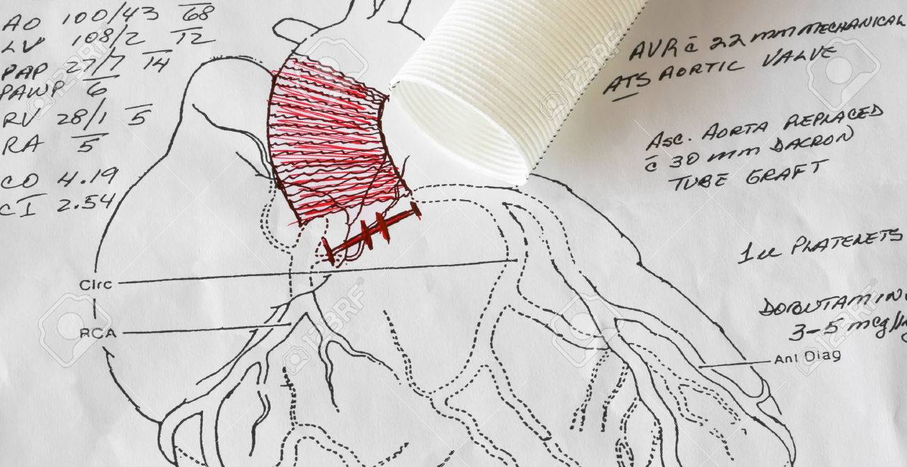 hight resolution of a cardiac surgeon s open heart surgery diagram for an aorta and aortic valve replacement stock photo