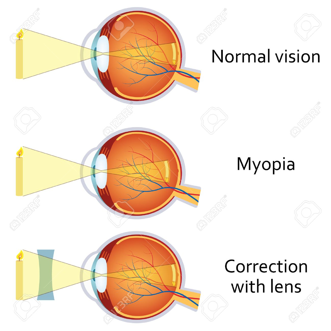 hight resolution of myopia and myopia corrected by a minus lens eye vision disorder stock vector