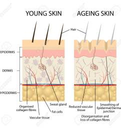 vector young healthy skin and older skin comparison skin layers and wrinkles diagram  [ 1299 x 1300 Pixel ]