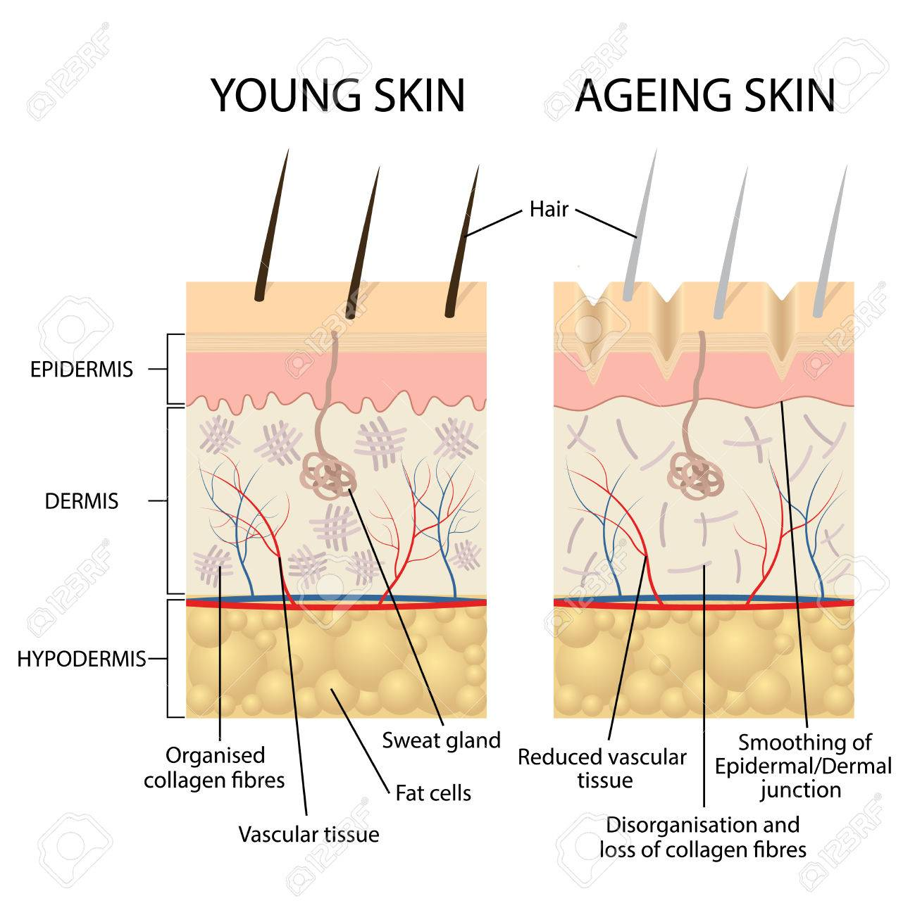hight resolution of vector young healthy skin and older skin comparison skin layers and wrinkles diagram