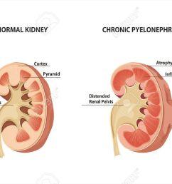 diagram of normal kidney wiring diagram pass diagram of normal kidney [ 1300 x 838 Pixel ]