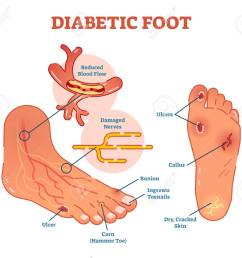 diabetic foot medical vector illustration scheme with common foot conditions stock vector 94739246 [ 1300 x 1142 Pixel ]