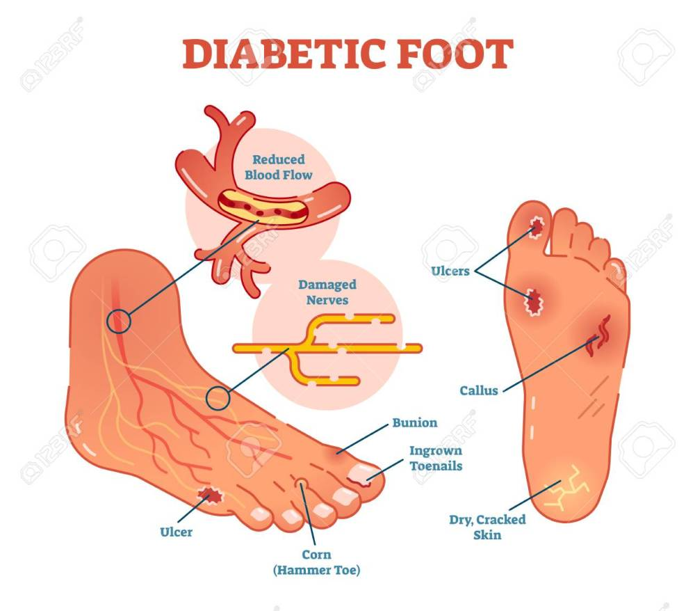 medium resolution of diabetic foot medical vector illustration scheme with common foot conditions stock vector 94739246