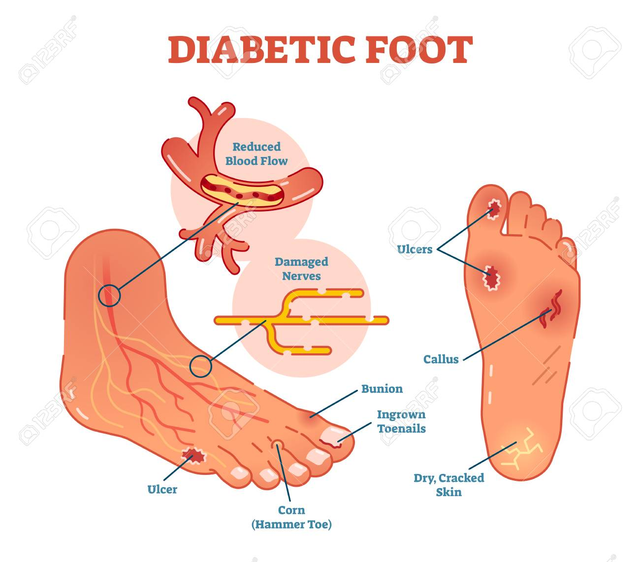 hight resolution of diabetic foot medical vector illustration scheme with common foot conditions stock vector 94739246