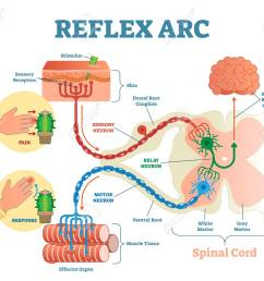 spinal reflex arc anatomical scheme vector illustration with spinal cord stimulus pathway to [ 1300 x 1089 Pixel ]