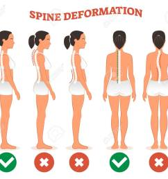 spine deformation types and healthy spine comparison diagram poster with back bone curvatures female profile [ 1300 x 1124 Pixel ]
