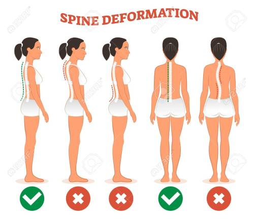 small resolution of spine deformation types and healthy spine comparison diagram poster with back bone curvatures female profile