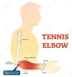 tennis elbow medical fitness anatomy vector illustration diagram with arm bones joint and muscles  [ 1197 x 1300 Pixel ]
