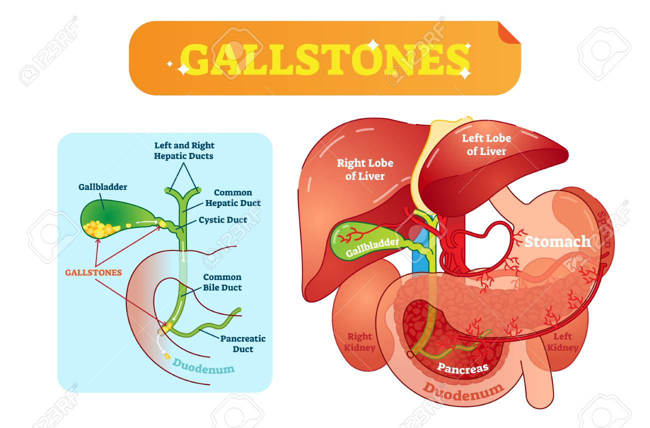 gallbladder location diagram clarion stereo wiring gallstones anatomical cross section vector illustration with abdominal cavity and bile ducts