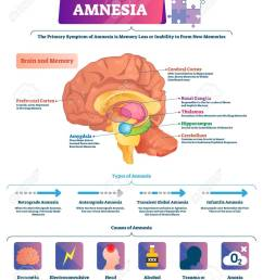 amnesia vector illustration labeled brain memory loss disease types scheme diagram with cerebral  [ 1059 x 1300 Pixel ]