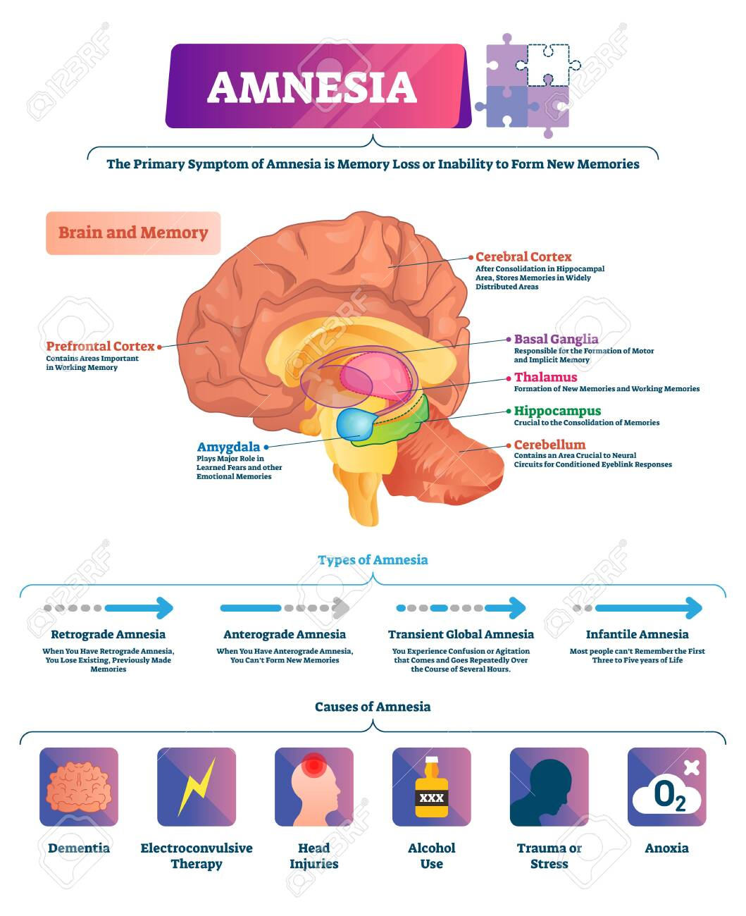 hight resolution of amnesia vector illustration labeled brain memory loss disease types scheme diagram with cerebral