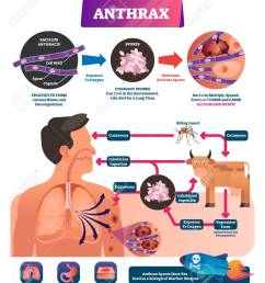 anthrax vector illustration labeled medical infection disease cycle scheme bacterial illness used as biological [ 1102 x 1300 Pixel ]