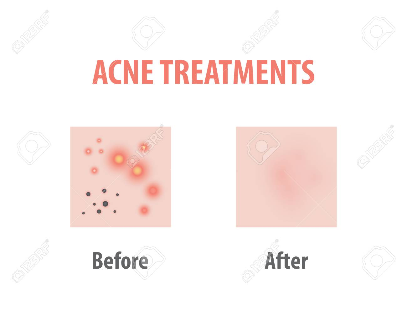 hight resolution of acne treatments diagram illustration vector on white background beauty concept stock vector 100397756