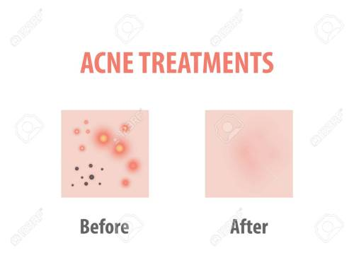 small resolution of acne treatments diagram illustration vector on white background beauty concept stock vector 100397756