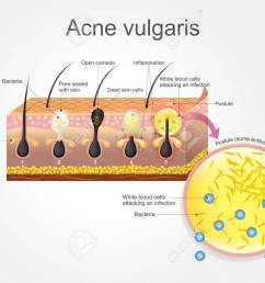 acne vulgaris is a long term skin disease that occurs when hair follicles become clogged [ 1300 x 975 Pixel ]