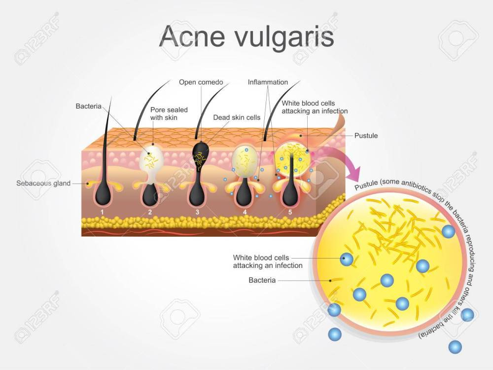 medium resolution of acne vulgaris is a long term skin disease that occurs when hair follicles become clogged
