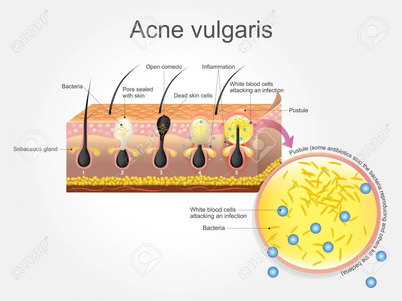 hight resolution of acne vulgaris is a long term skin disease that occurs when hair follicles become clogged