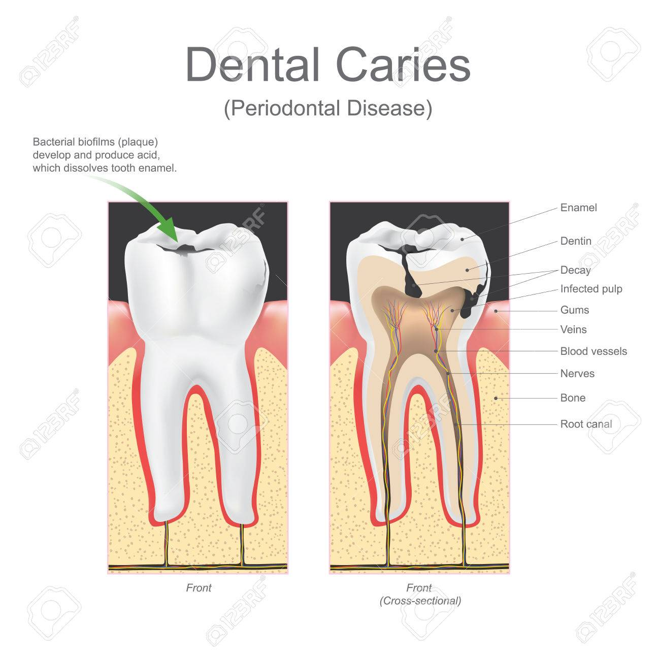 hight resolution of it is caused by specific types of bacteria they produce acid that destroys the tooth s enamel and the layer under it