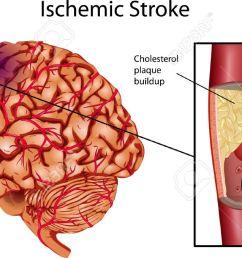 brain stroke a illustration of ischemic stroke stock vector 13699566 [ 1300 x 679 Pixel ]