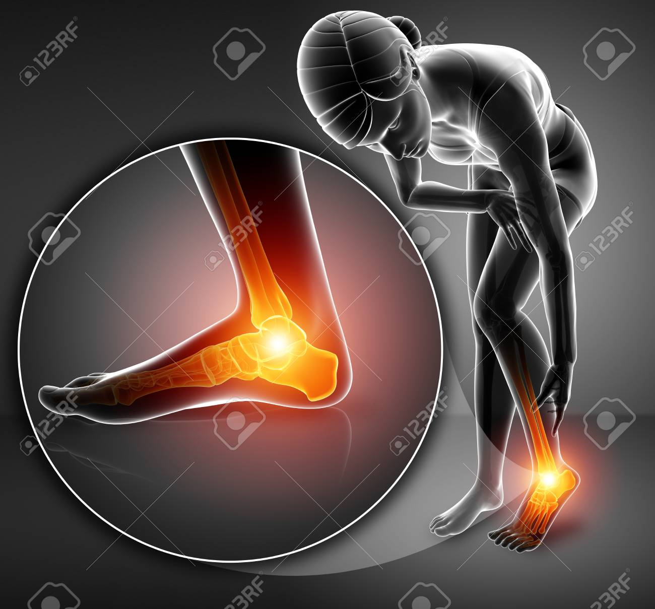 hight resolution of 3d illustration of female foot with ankle pain stock illustration 73769832