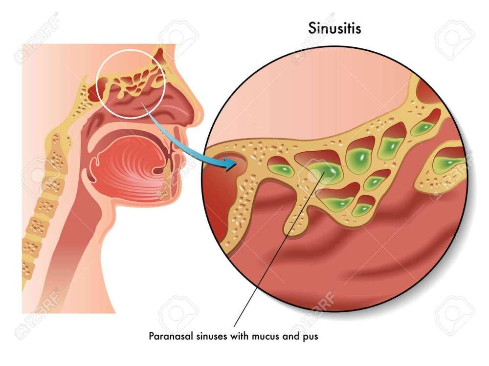 medium resolution of  24539456 sinusitis